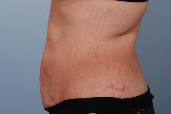 rfal laser fat removal - boss md plastic surgery - bergen county nj
