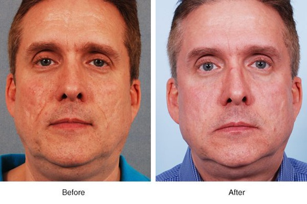 Acne Scar Revision by Boss MD Plastic Surgery