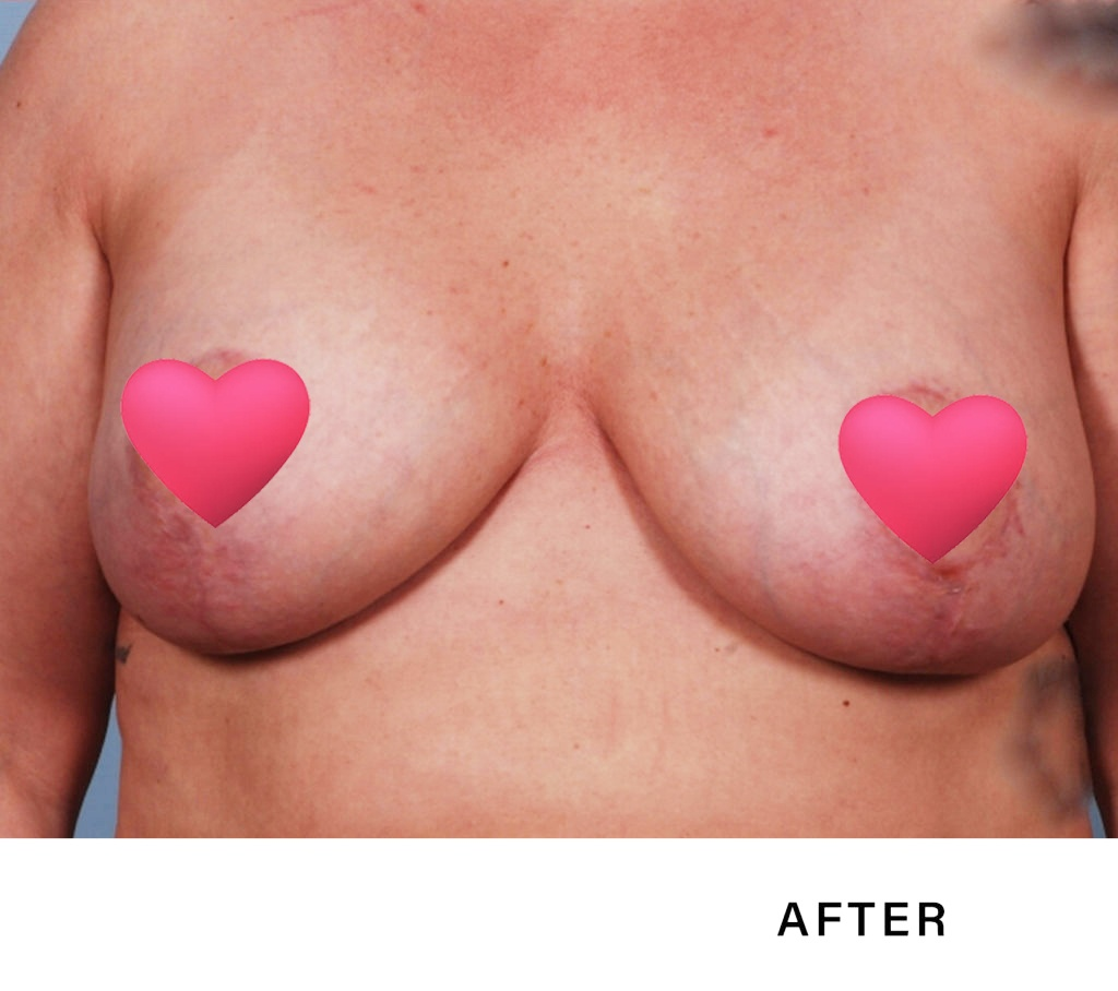 blepharoplasty - boss md plastic surgery - bergen county nj before