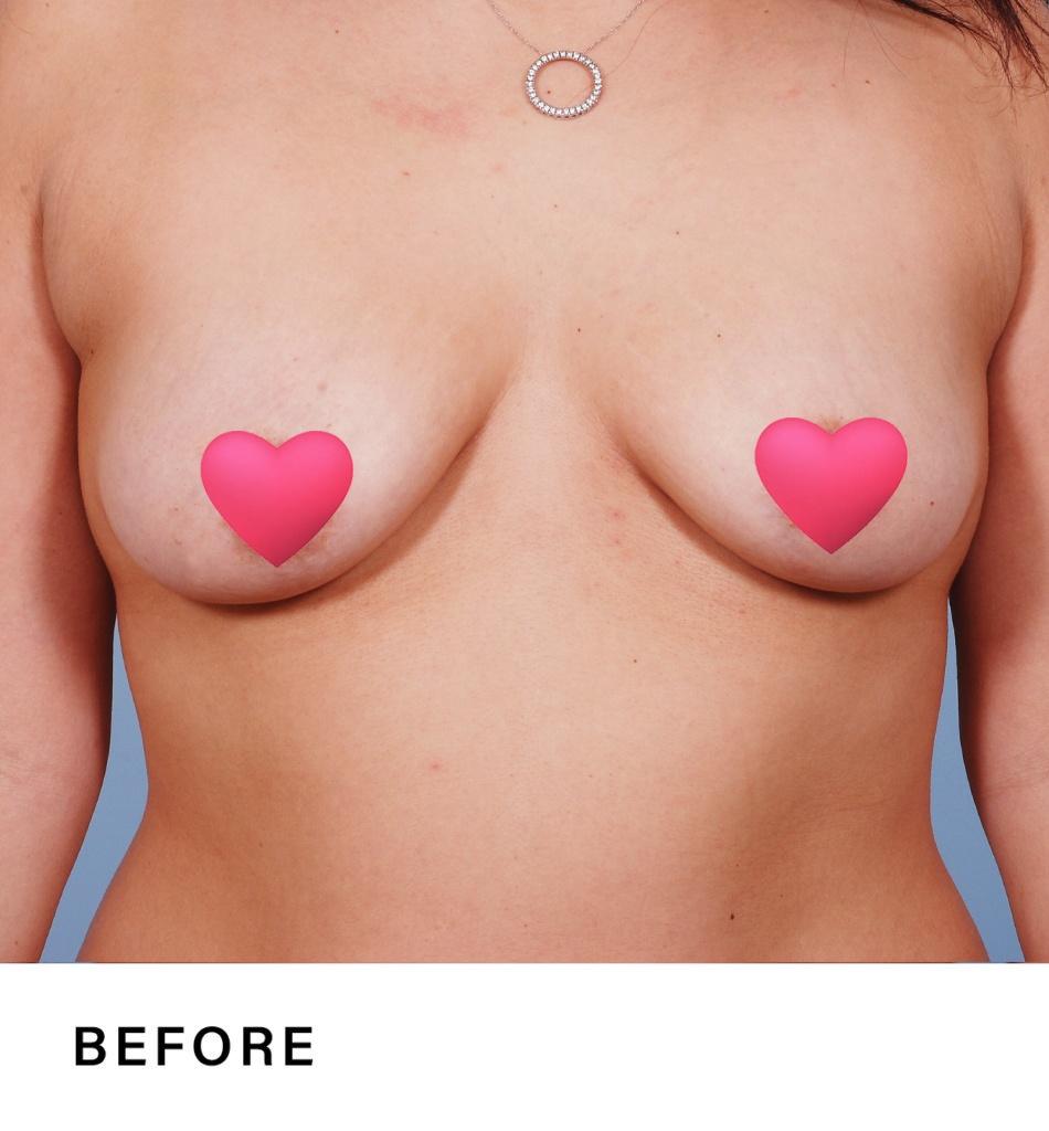 breast augmentation - boss md plastic surgery - bergen county nj