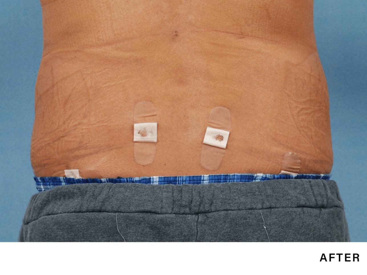laser fat reduction for men - boss md plastic surgery nj