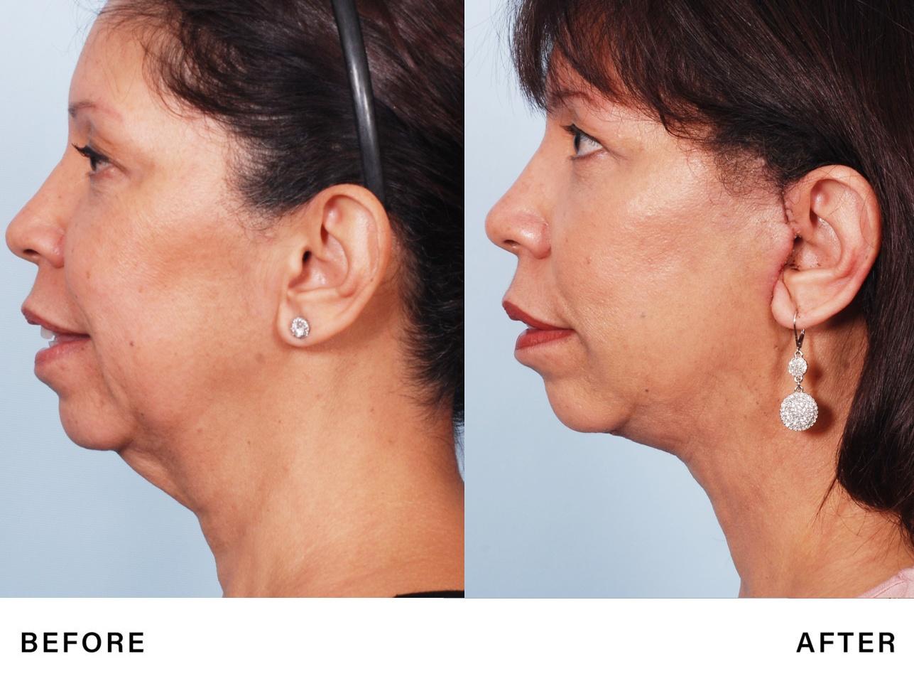 neck tightening - genlyft - bossmd plastic surgery nj