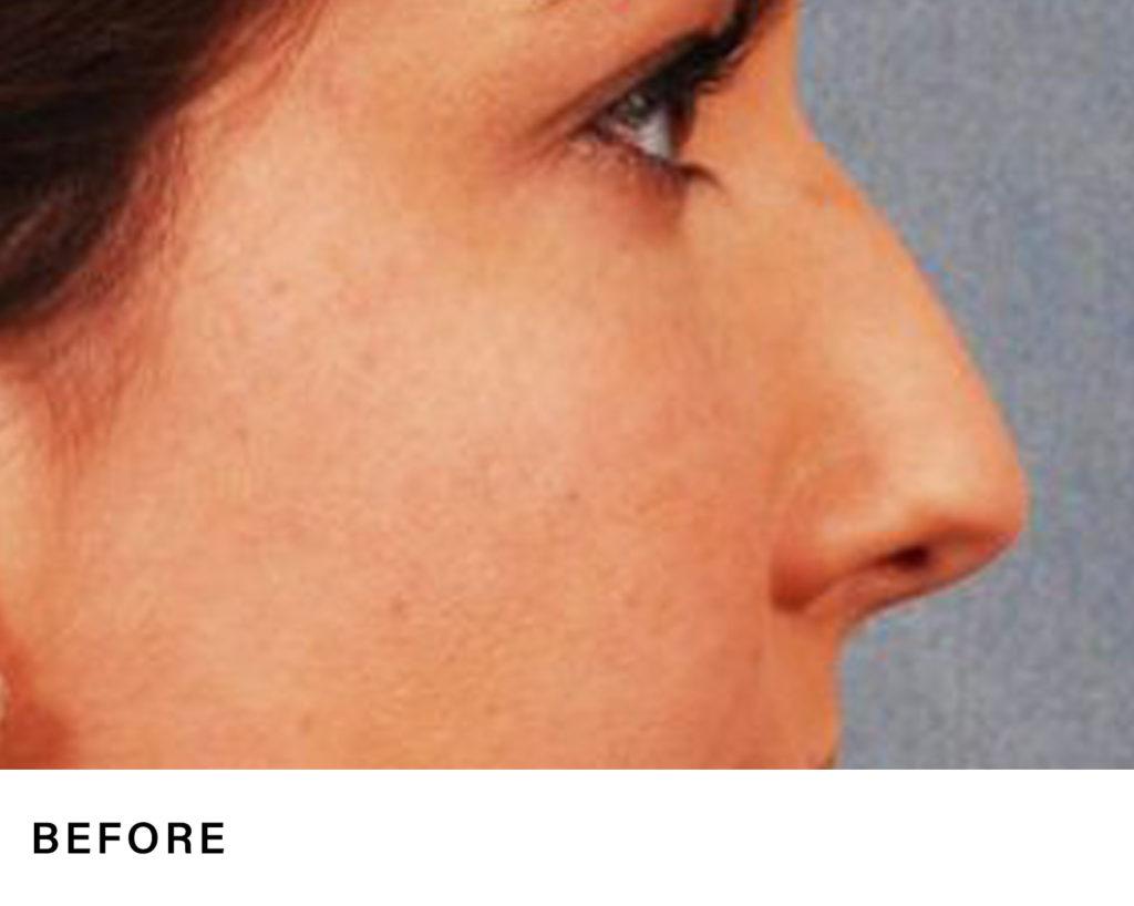 rhinoplasty - boss md plastic surgery - bergen county nj