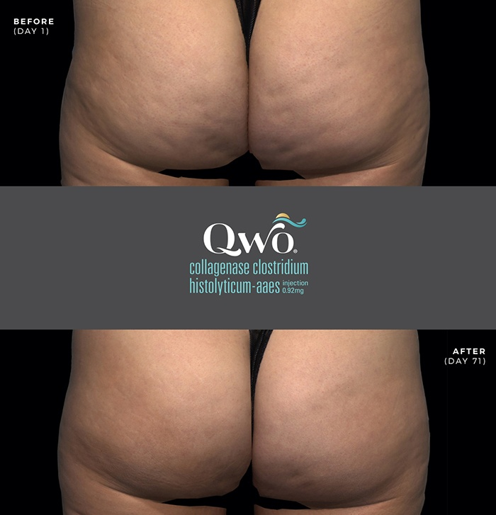 qwo cellulite injections - boss md plastic surgery - bergen county nj