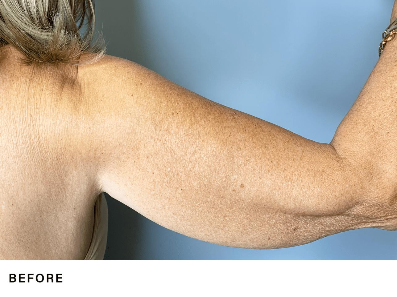 rfal laser arm fat reduction - genlyft body - bossmd plastic surgery nj