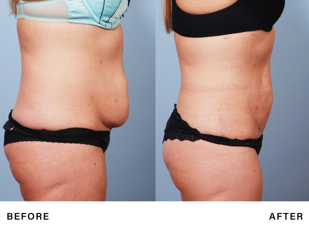 rfal laser fat reduction - genlyft body - bossmd plastic surgery nj